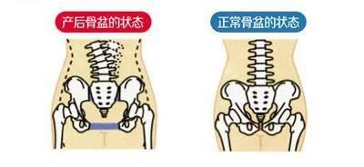 重庆龙脊运动康复中心产后康复